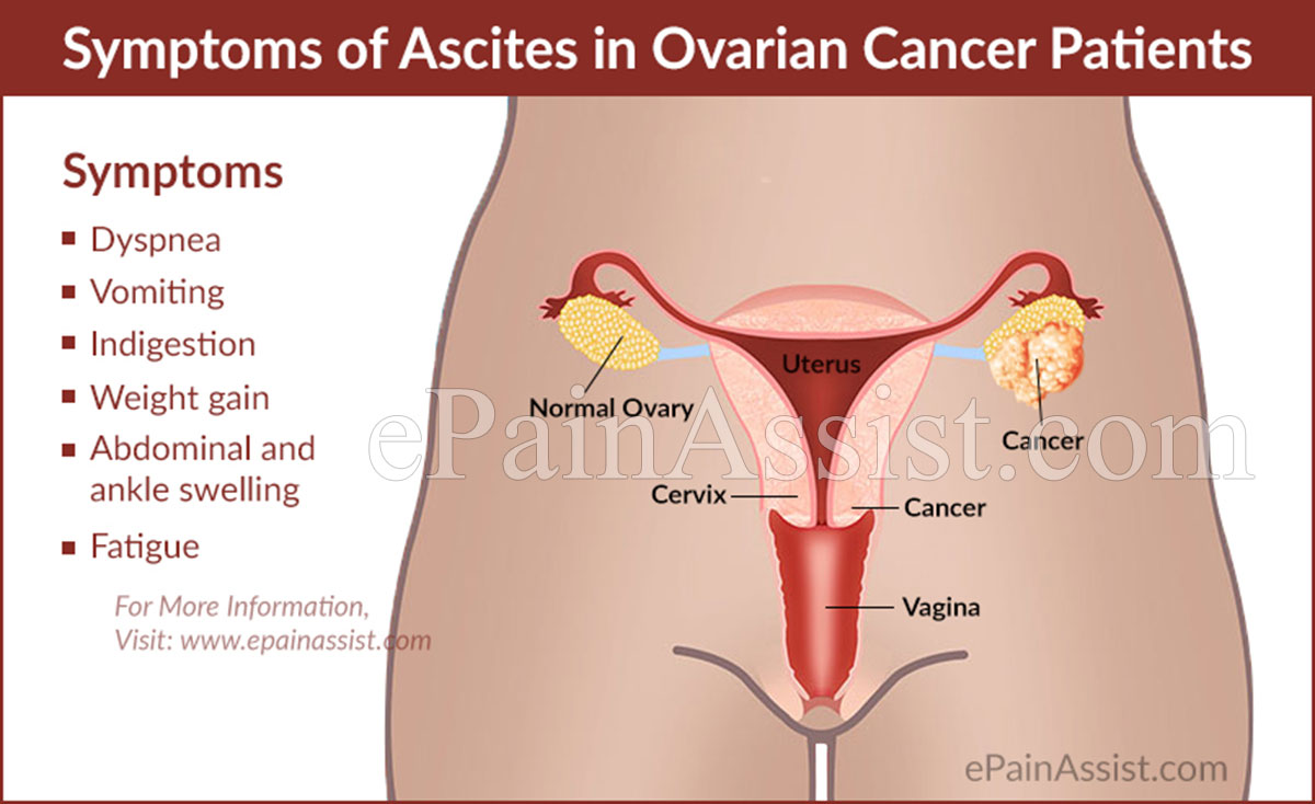 ovarian cancer abdominal ascites