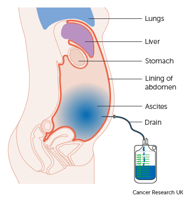 ovarian cancer abdominal fluid toxine botulique type a