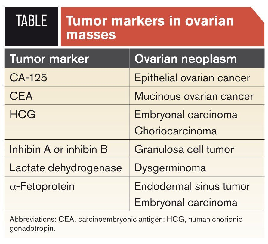 ovarian cancer markers