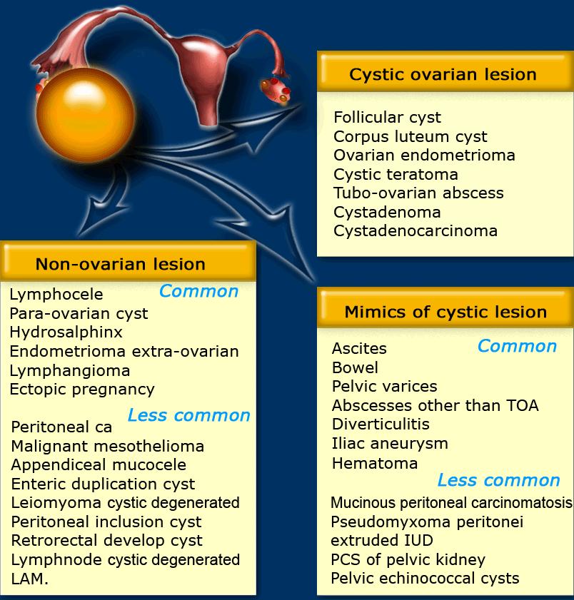 ovarian cancer usmle