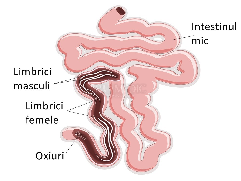 oxiuri balonare papillomatosis esophagus