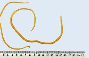 papiloma de vejiga benigno