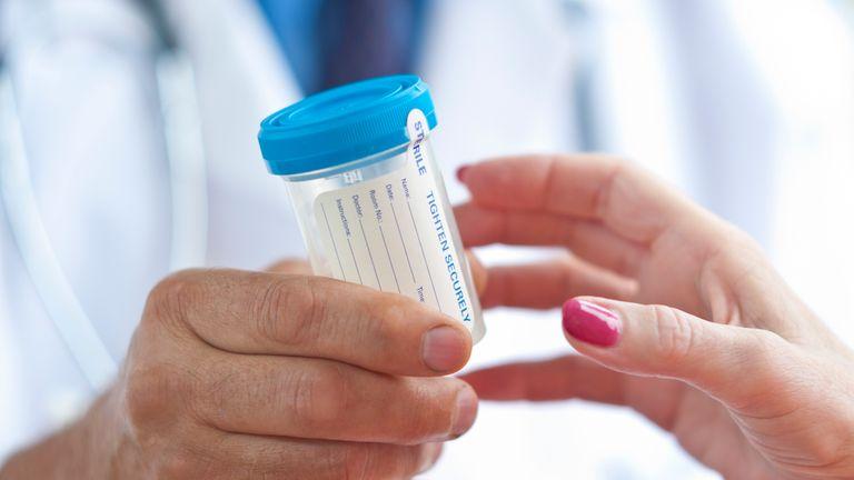 pancreatic cancer test hanorac parazitii drogat