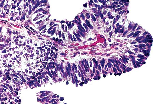 papillary carcinoma breast papilloma virus vaccino come si fa