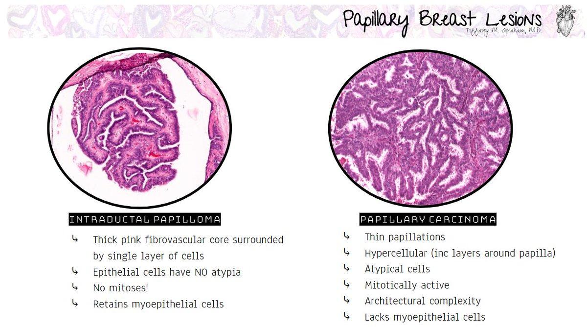 papillary lesion breast pathology
