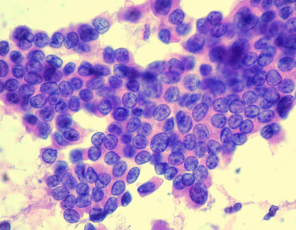 papilloma in neck hpv types associated with warts