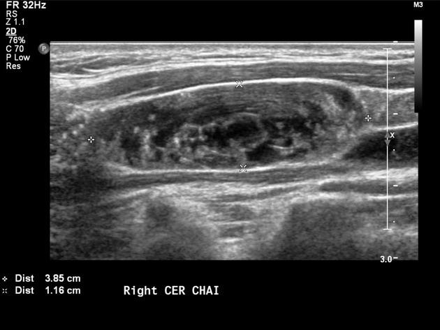papillary thyroid cancer in lymph nodes traitement pour le papillomavirus chez lhomme