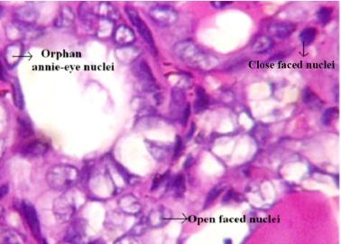 papillary thyroid cancer orphan annie eyes