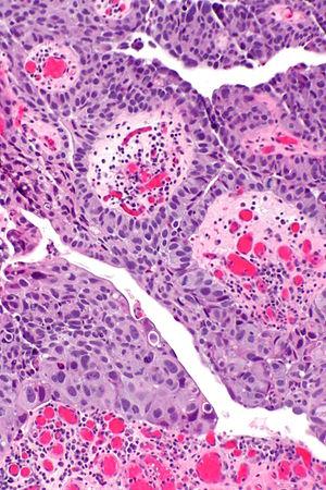 testicular cancer infertility