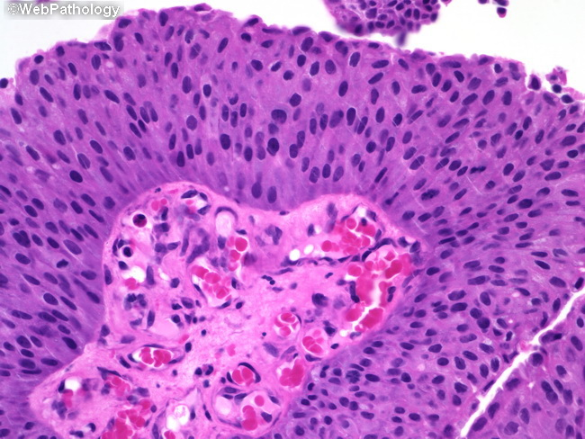 papillary urothelial carcinoma of the bladder