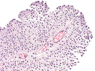 confluent and reticulated papillomatosis pictures papilloma virus palato sintomi