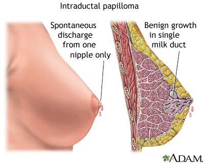 papilloma biopsy pain