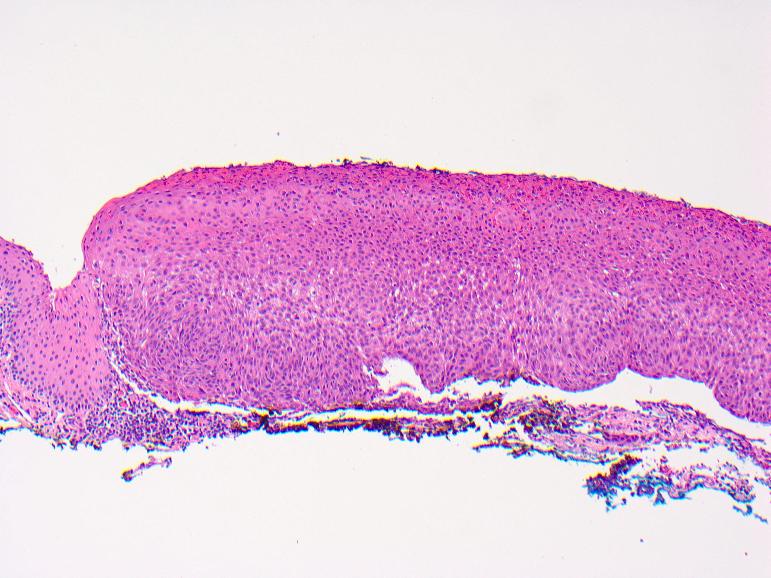 papilloma conjunctiva pathology