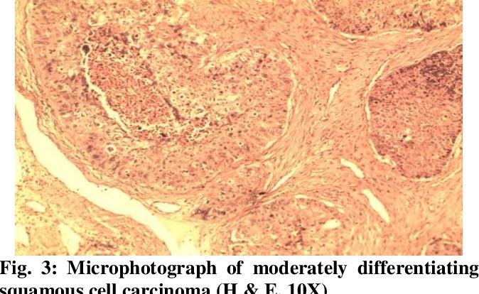 papilloma e carcinoma paraziti intestinali la adulti simptome