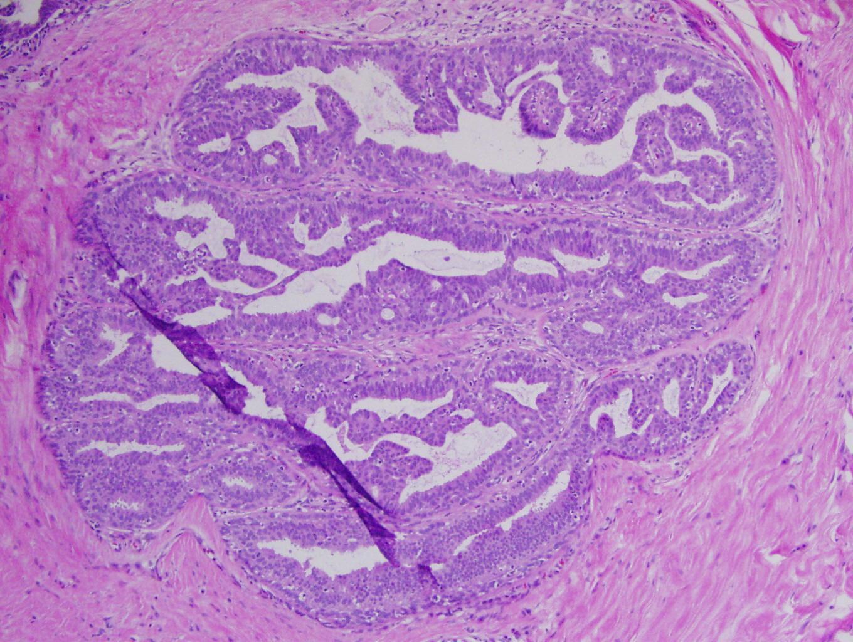 papilloma histology skin