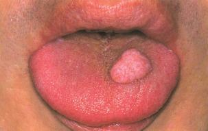 papilloma lesions