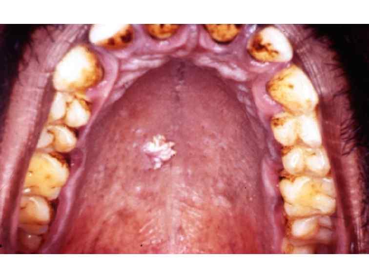 papilloma of the hard palate cancerul de san clasificare