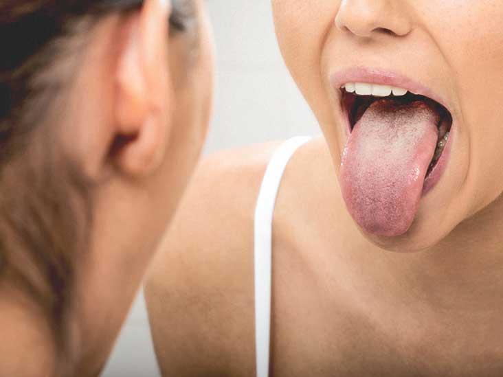 papilloma tongue nhs