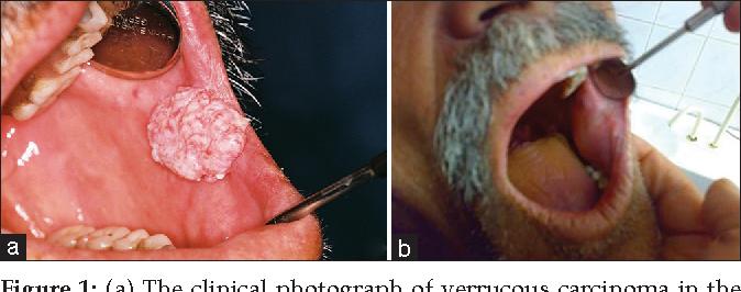 papilloma tumor cancer bucal segun la oms