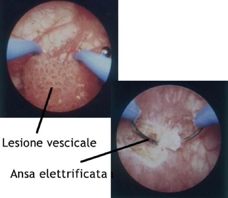 papilloma vescica urinaria papillomavirus wat is dat