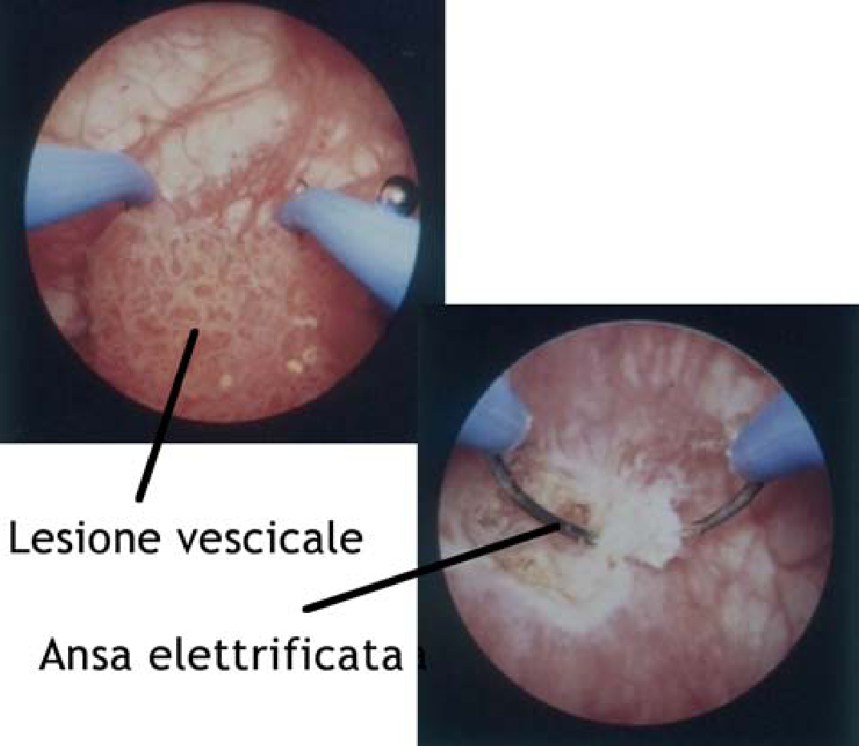 cancerul de col uterin stadiul 2b tipuri de paraziti intestinali la oameni