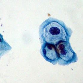 papilloma virus e fecondazione assistita hpv causes pid