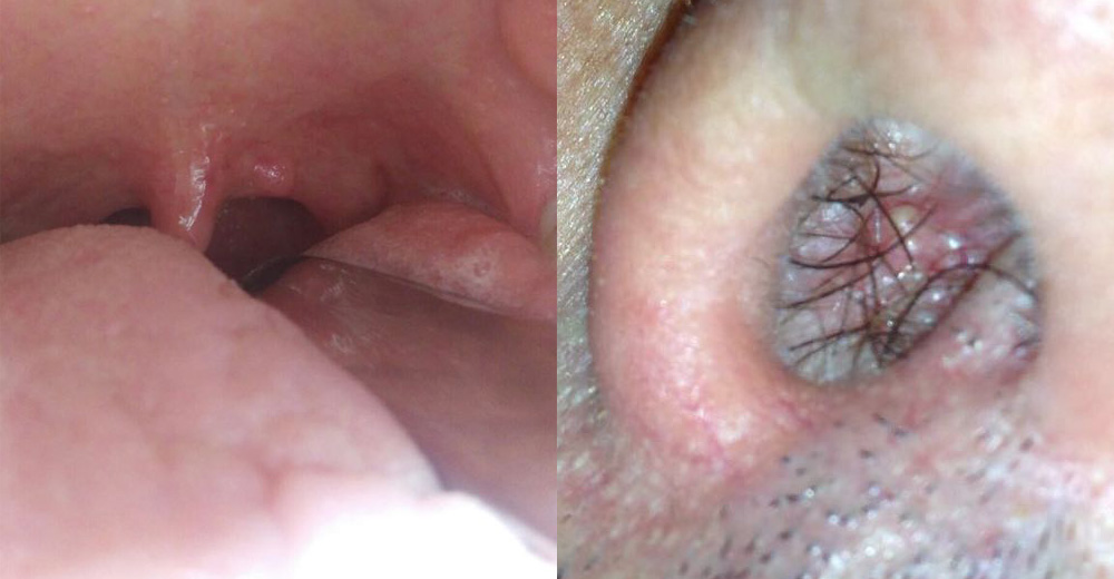 inverted papilloma nasal cancer plamani tuse