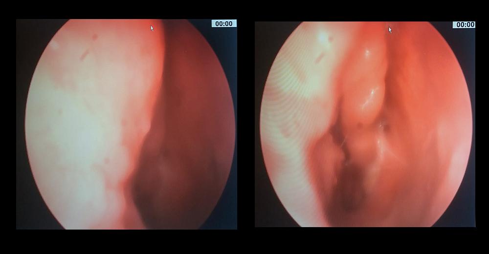 papilloma virus naso sintomi cancer de san mastectomia