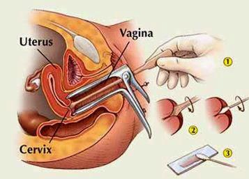 papilloma virus positivo e colposcopia papillomas virus uomo