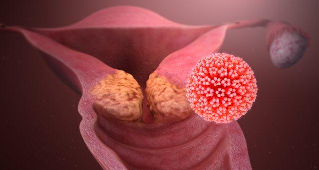 cancer in familial hemophagocytic lymphohistiocytosis