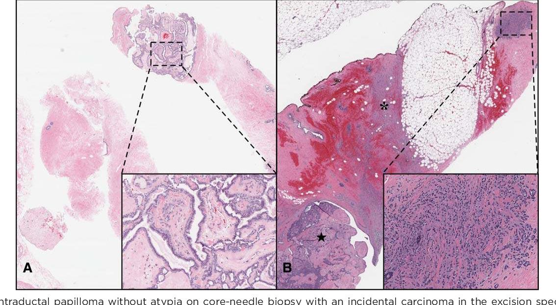papilloma cane cancer de hodgkin se cura