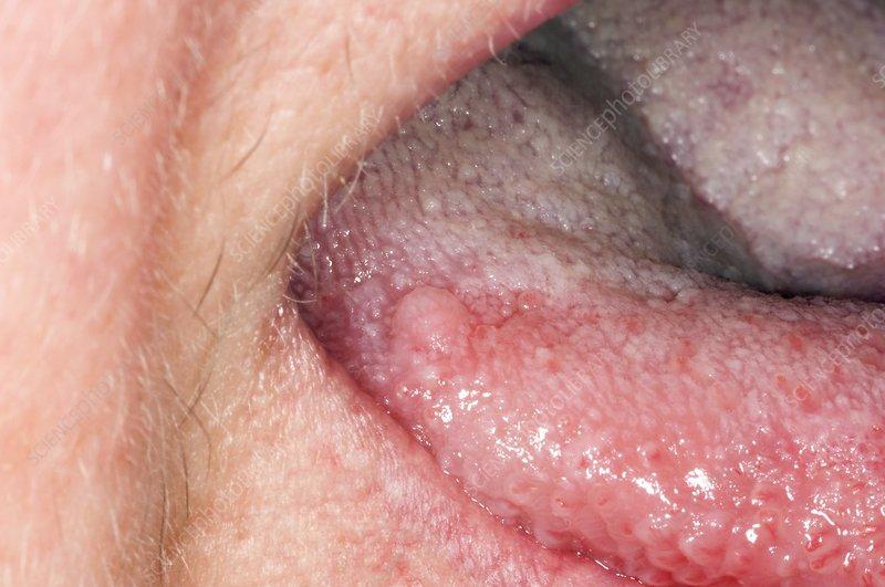 papillomas on tongue cancer no sange