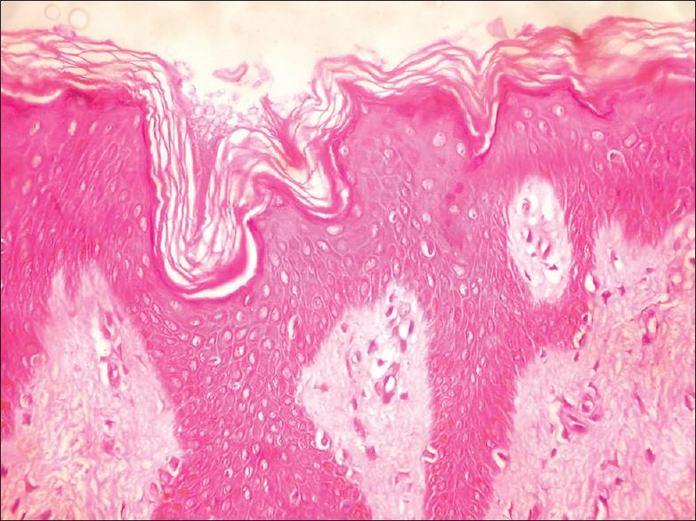 paraziti intestinali la adulti simptome
