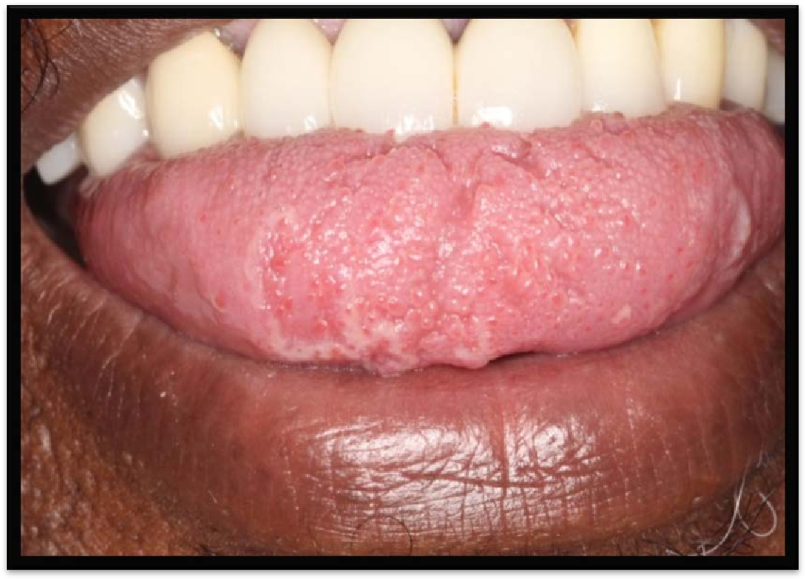 papillomavirus in tongue
