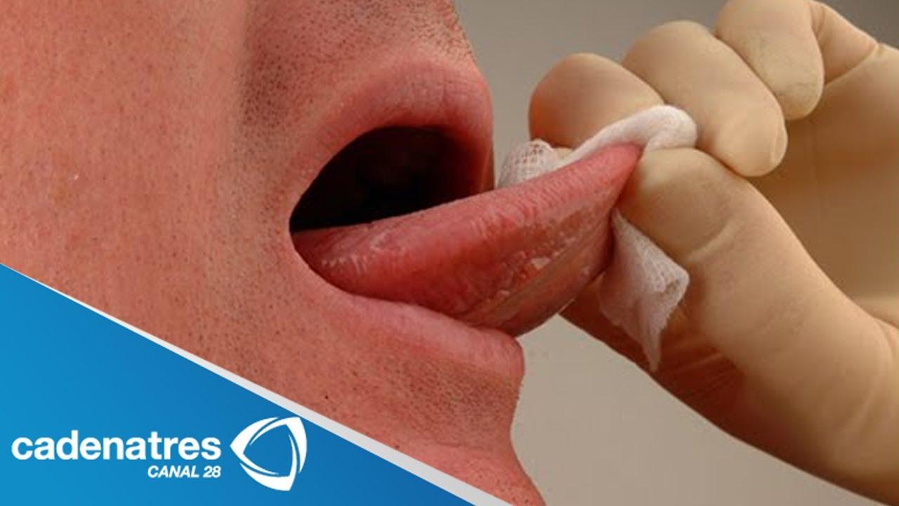 viral papillomas traitement papillomavirus chez les hommes