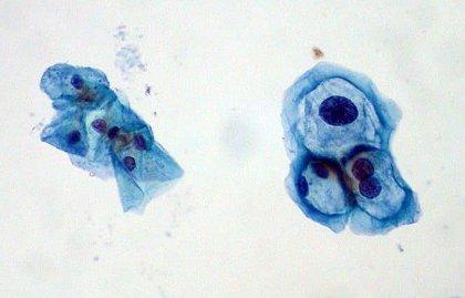 papiloma humano agresivo papilloma growth rate