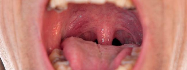 papiloma humano en la boca primeros sintomas ovarian cancer markers