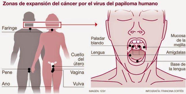 papiloma humano y vih es lo mismo hpv warzen was tun