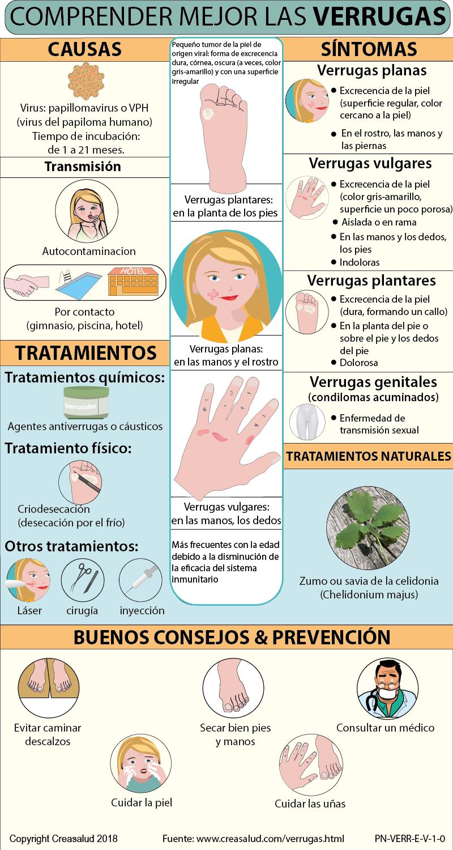 papiloma que es sintomas y tratamiento
