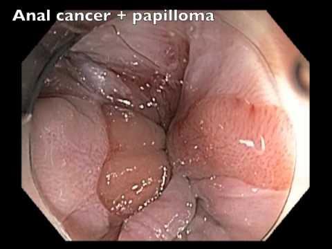 papiloma rectal papilloma virus con lesioni