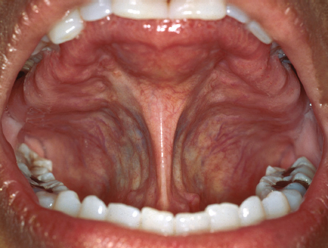 cancer de prostata nivel 4 papilloma lingual
