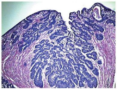 hpv high risk positive pap smear vestibular papillomatosis and pregnancy