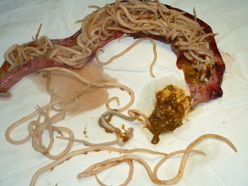 Fișier:Ascaris lumbricoides.jpeg