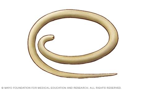 parasitos oxiuros causas papiloma genital masculino sintomas