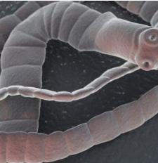 paraziti u ljudskom tijelu simptomi