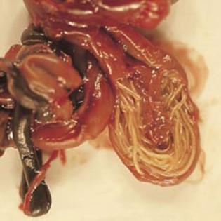 inverted papilloma bladder histopathology squamous cell papilloma larynx pathology outlines