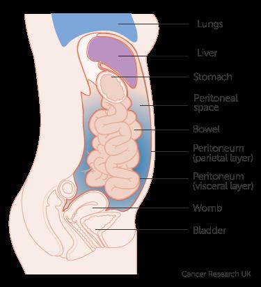 peritoneal cancer fluid drainage cancerul mamar factori de risc
