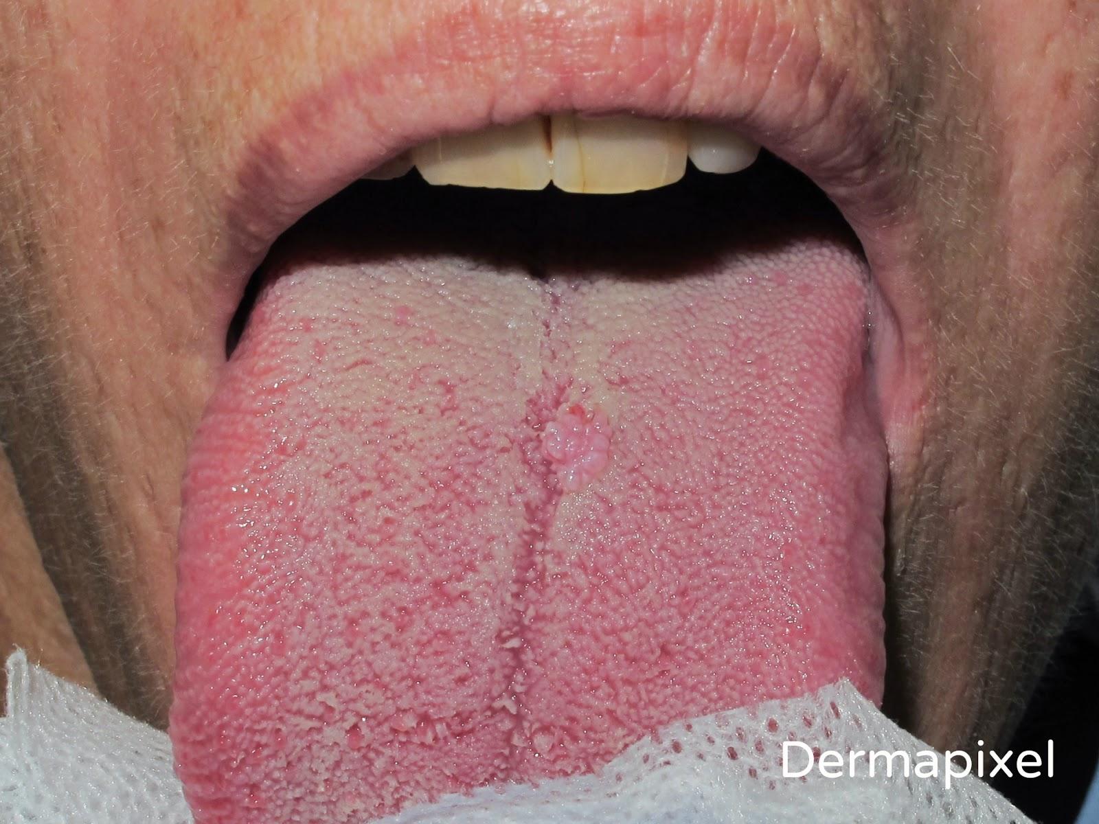 puede salir papiloma en la boca