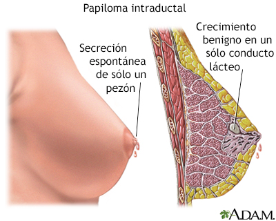 metastatic cancer marathi testicular cancer risk