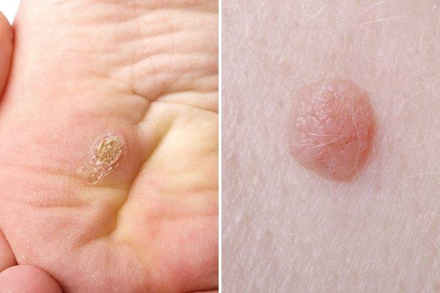 que es papiloma humano y sintomas hpv warts get rid of